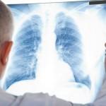 Como se llaman los especialistas en pulmones